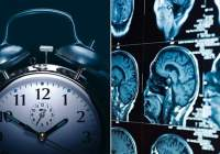 Study finds actual changes in brain after sleep loss that make pain worse
